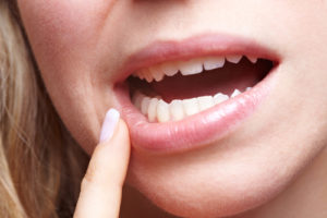 tooth infection remedies2